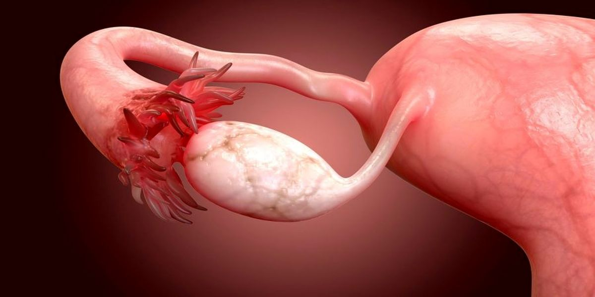 هشدار: نفخ شکم نشانه بروز سرطان زنان